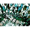 Mikroskopické preparáty - Lidské tělo - patologické tkáně (1.část)