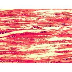 Mikroskopické preparáty - Lidské tělo - patologické tkáně (2.část)